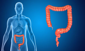 previeni il tumore al colon